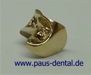 Inlay aus Gold